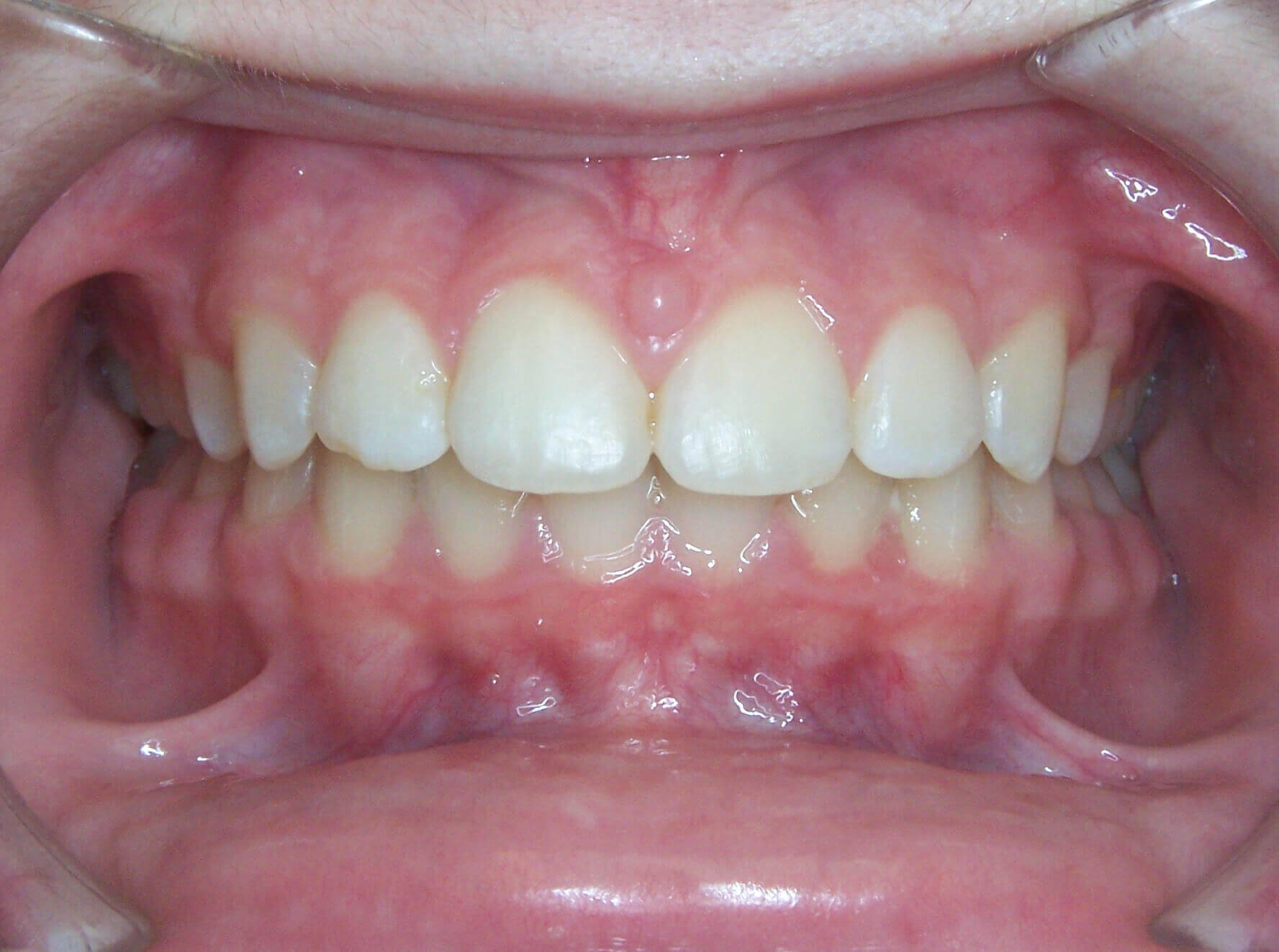Before Braces at Zaytoun Orthodontic in Raleigh