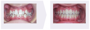 Crowded Teeth Example