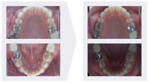 Orthodontic Relapse Example