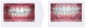 Openbite Example