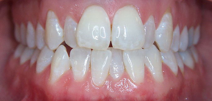 Orthodontic Relapse