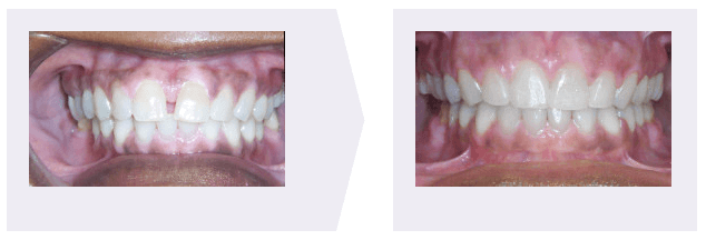 Gap Teeth Before and after