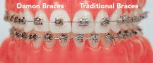 Damon and traditional braces side by side